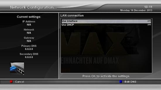 Xtrend ET9500 Netzwerk DHCP